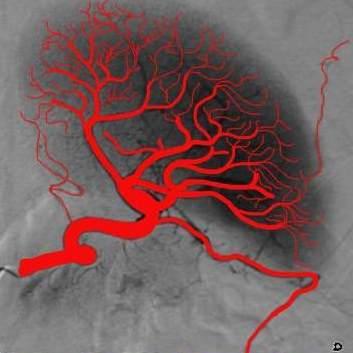 arteries, spleen, angiogram